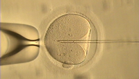 Intracytoplasmic Sperm Injection. © CUSM