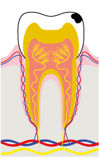 Stage 1 - Cavity is limited to the enamel: no pain