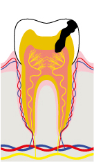 Stage 3 - The cavity reaches the pulp: raging toothache