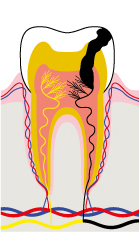Stage 4 - The dental pulp is infected: tooth abscess